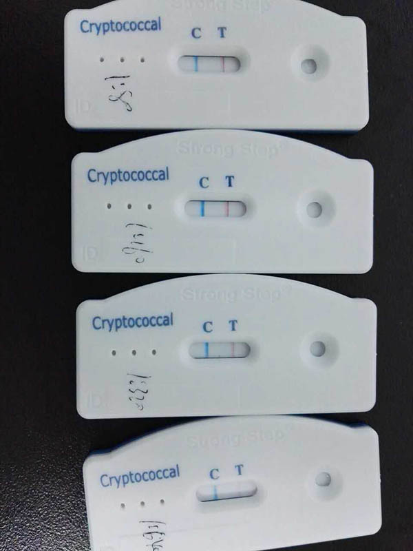 Cryptococcal Antigen Test3