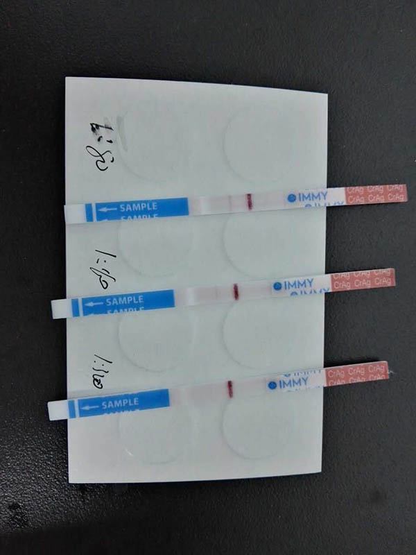 Cryptococcal Antigen Test4